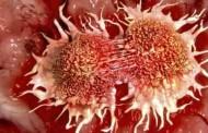 تبديل بافت سرطاني به بافت سالم در آزمايشگاه