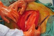 اندیکاسیون های توراکوتومی در بخش اورژانس