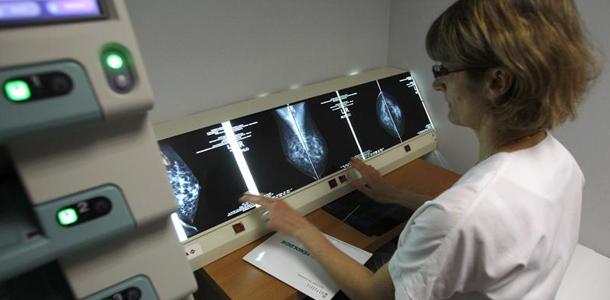 انجمن سرطان آمریکا دستورالعمل غربالگری سرطان پستان 2015 خود را منتشر کرد