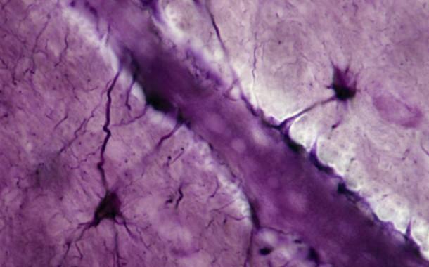 پزشکان برای اولین بار موفق به رخنه در سد خونی-مغزی شدند