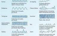 الگوهای مختلف تنفس: طبیعی و غیرطبیعی! (تصویر)