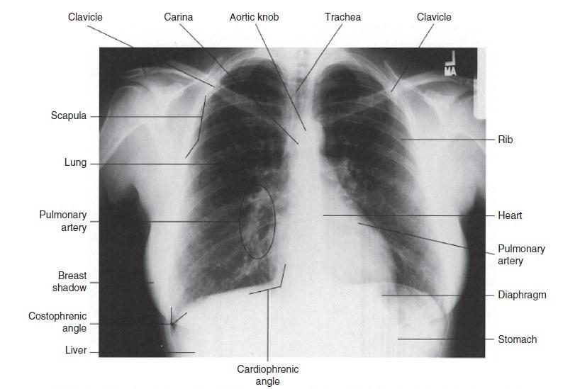 محل ساختارهای موجود در قفسه سینه در یک رادیوگرافی طبیعی (تصویر)