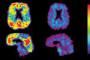 دانشمندان توانستند ابزاری بالقوه برای تشخیص زودهنگام آلزایمر شناسایی کنند