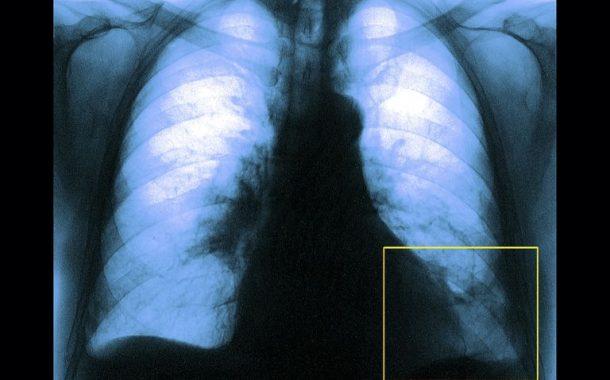 اقدامات درمانی مراقبتی در آمبولی ریوی حاد